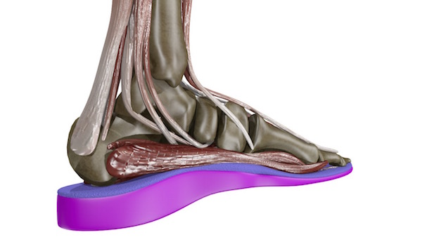 Custom Orthotics in London, ON – SoleScience