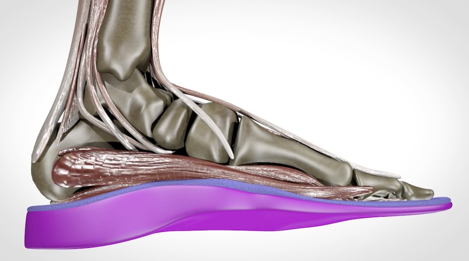 Custom orthotics to help support the foot core by SoleScience in London ON