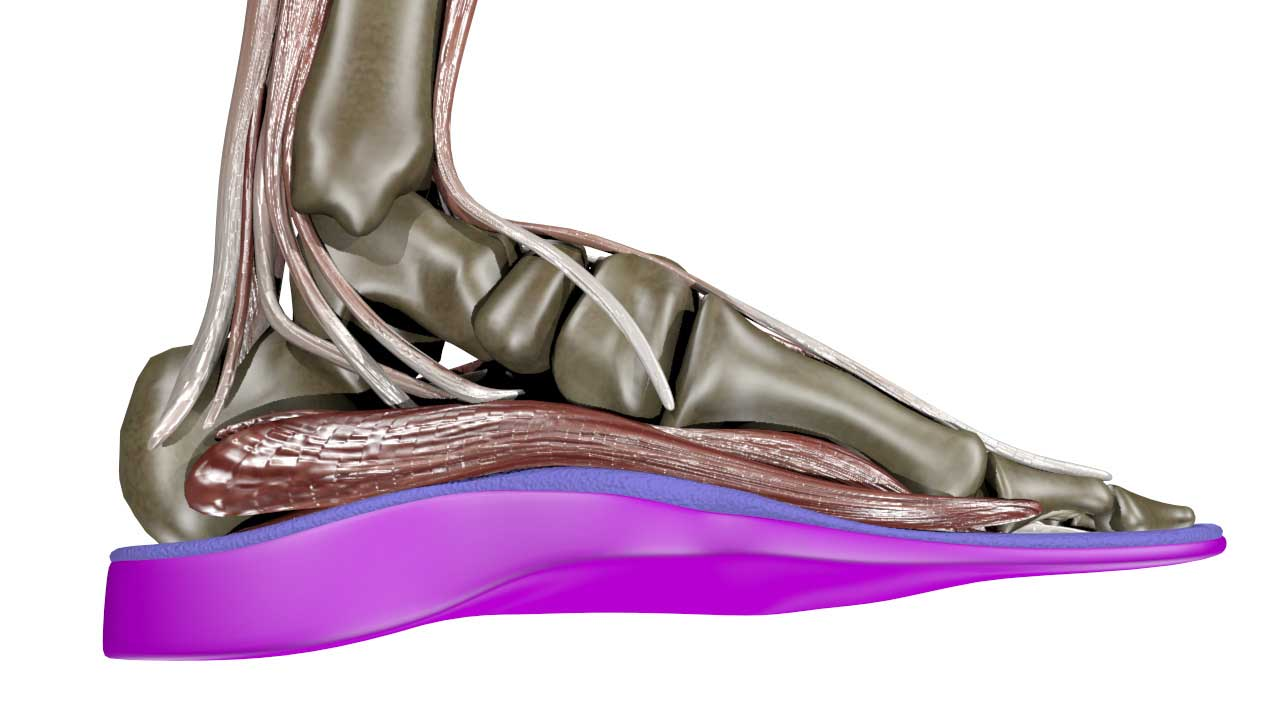 Achilles Tendinitis Treatment at SoleScience