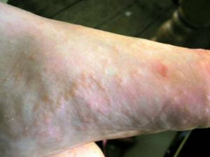 Conditions Of The Skin And Nails Solescience Orthotics